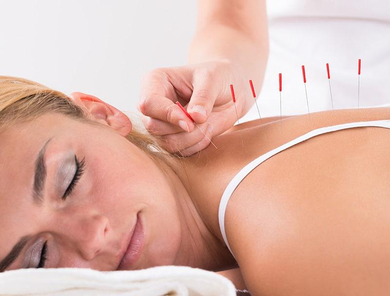 acupuncture in north york