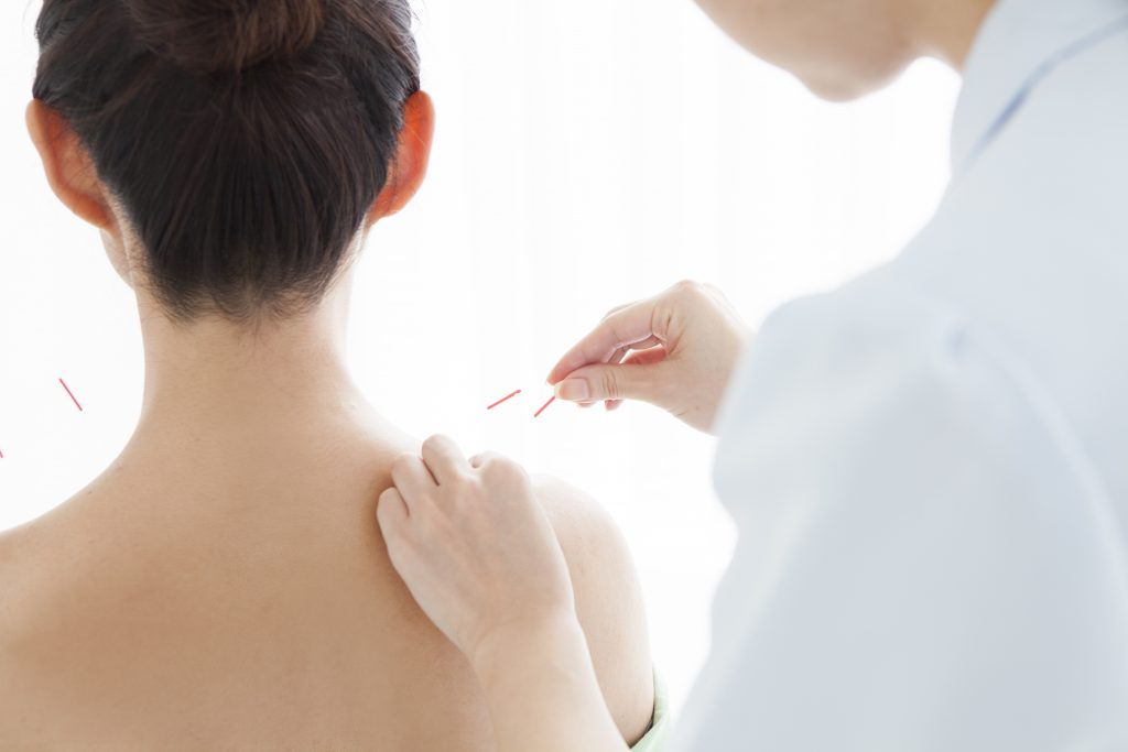 can acupuncture help a stiff and sore neck